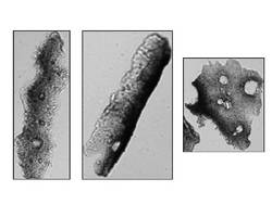 Particle Analyzers image encapsulated Paclitaxel.