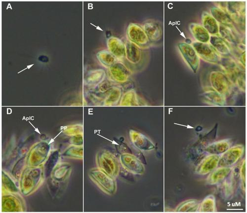 Sapphire Energy is working on a way to manage Amoeboaphelidium protococcarum, one of the open pond algae cultivation method's greatest foes.