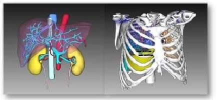 Quantitative Imaging Solution aids cancer treatment.