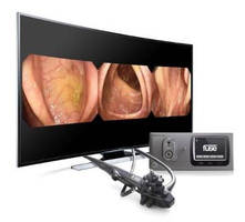 Full Spectrum Endoscopy System enables wider view of anatomy.