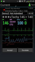 Mobile Monitoring App for Nurses fosters timely intervention.