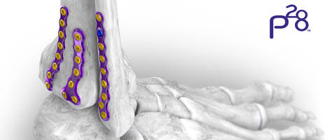 Gorilla® Ankle Fracture Plating System offers surgeons 44 total plates.