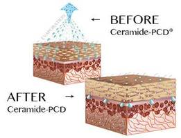 Ceramide-PCD® Rice Ceramides Approved by Japanese Government