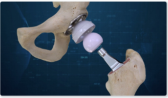 New Conformis Hip System Designed to Improve Operational Efficiency for The Surgeon and Improve Patients Outcome