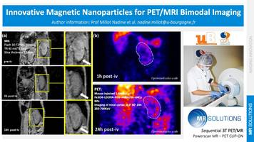 New PET/MRI Scanner Provides Superior Soft Tissue Contrast and Molecular Imaging Ability