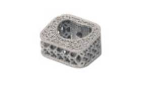 New Porous Titanium Implant from NuVasive is Ideal for Cervical Applications