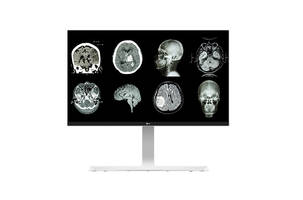 Latest Monitors from LG are Ideal for Hospitals and Clinics