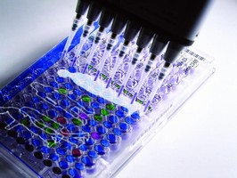 UK Biobank Implements Nautilus LIMS by Thermo Electron Tracking Data from One of Largest Medical Research Studies Ever