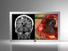 HD Flat LCD Display targets digital operating rooms.