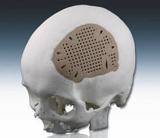 First Use of Laser-Sintered PEEK for Craniofacial Implants